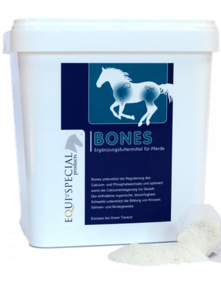 ESP Bones